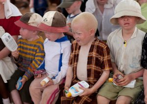 People with albinism are particularly sensitive to the sunPhoto credit: UTTS
