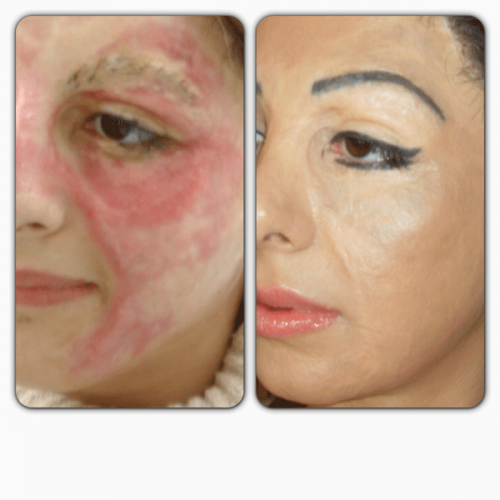 Permanent makeup tattooist basma hameed hides scars burns for Tattoo foundation cover up